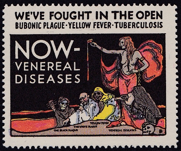 US Local TB #84A